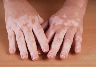 Vitiligo dan Albinisme, Apa Bedanya?