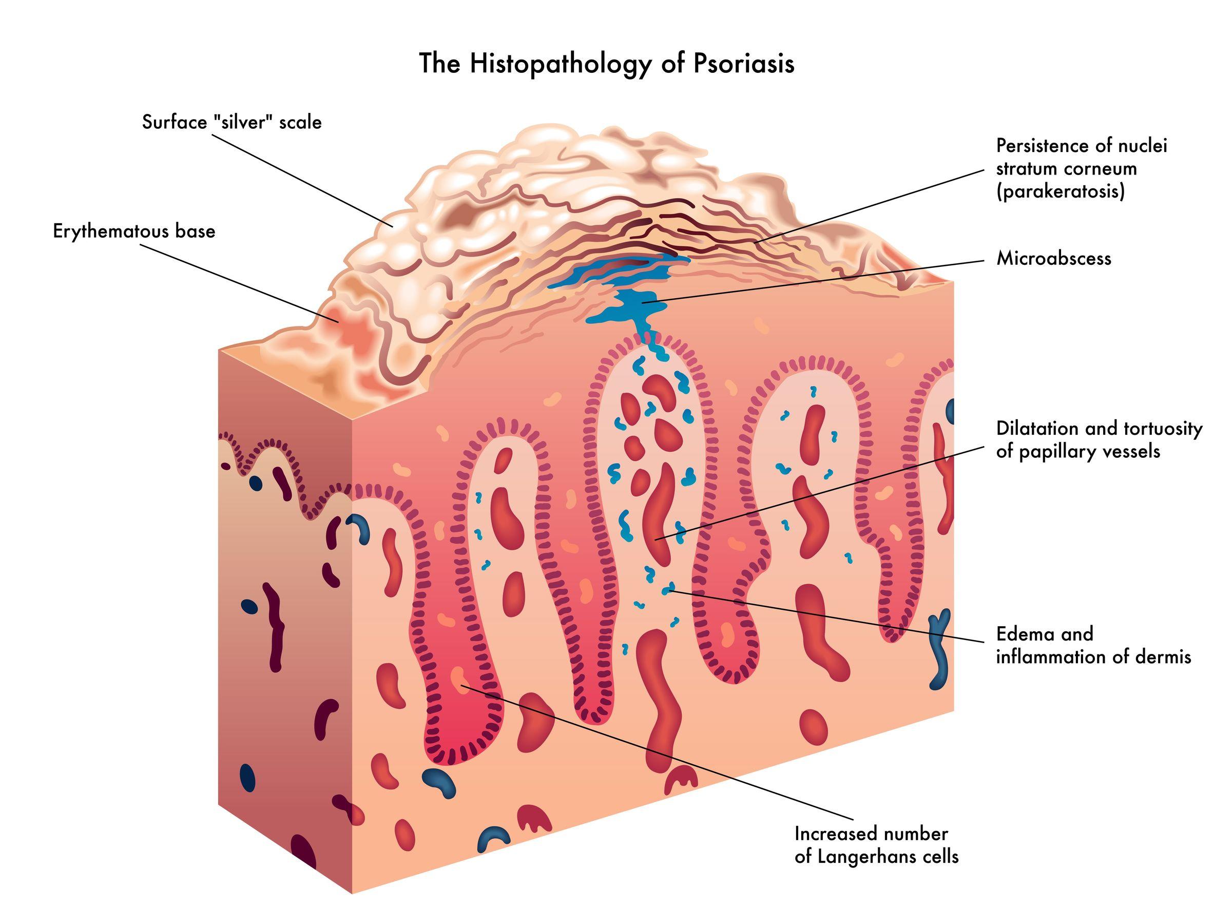 Jangan Heran Kalau Anak-Anak Juga Bisa Menderita Psoriasis