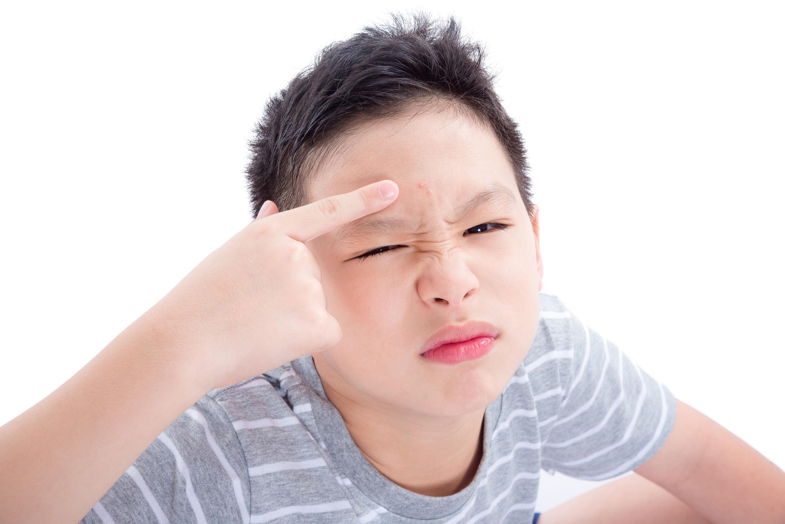 Kenali Kandungan Aktif Pada Obat Jerawat untuk Remaja