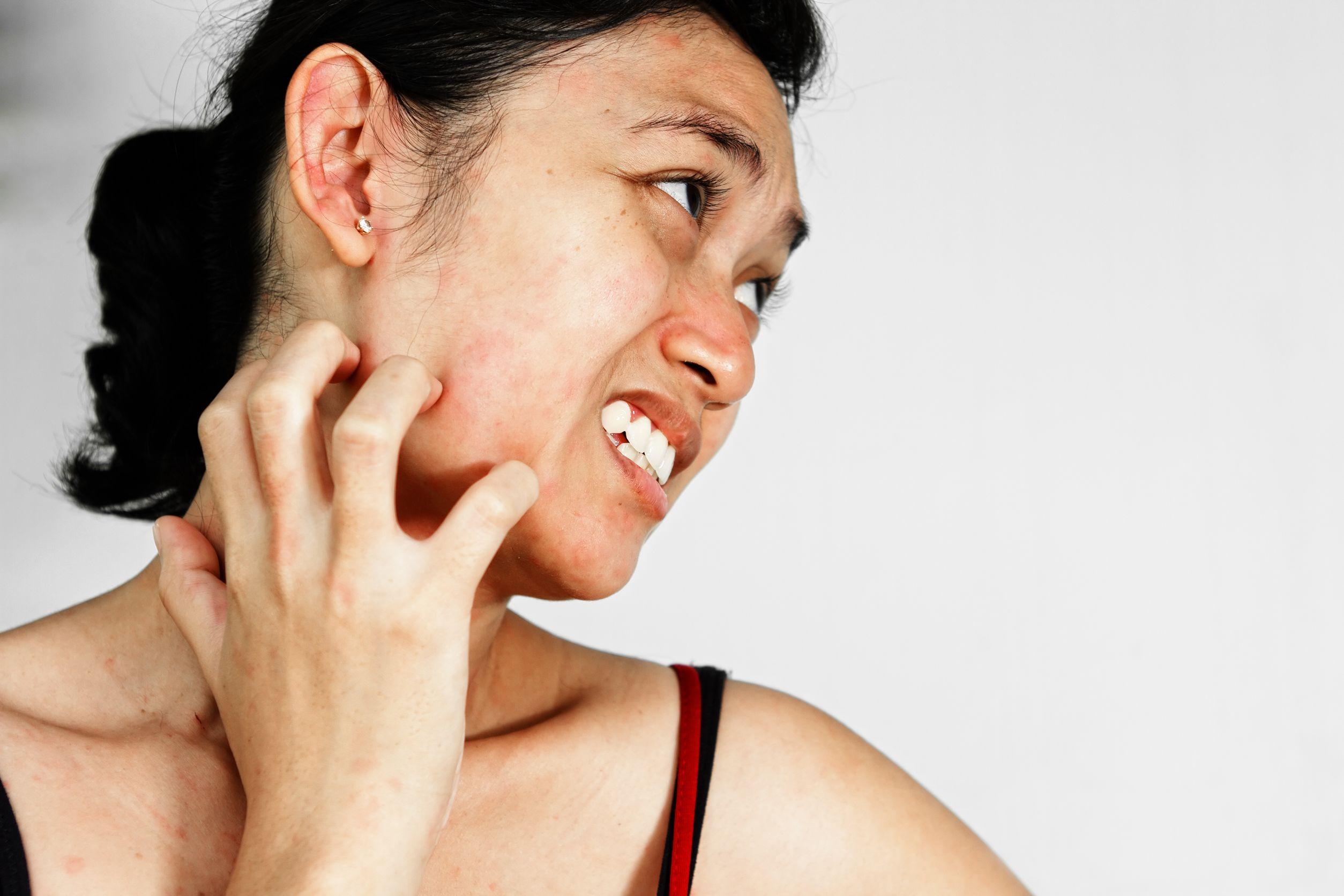 Beberapa Penyebab Wajah Jadi Berwarna Kemerahan