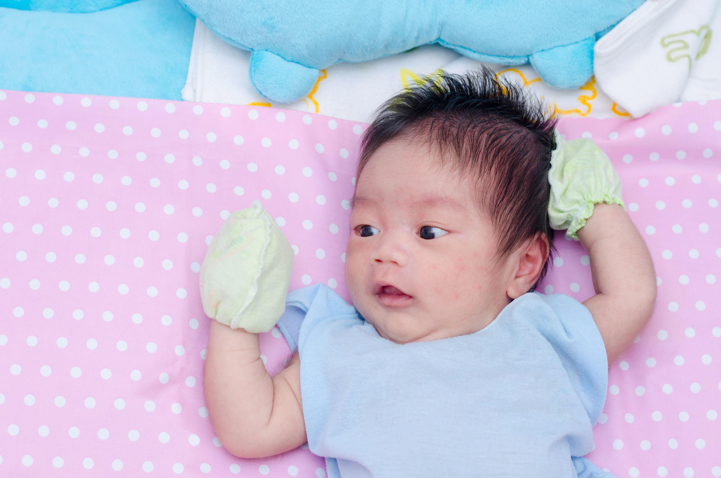Jerawat Bisa Terjadi Pada Bayi dan Anak